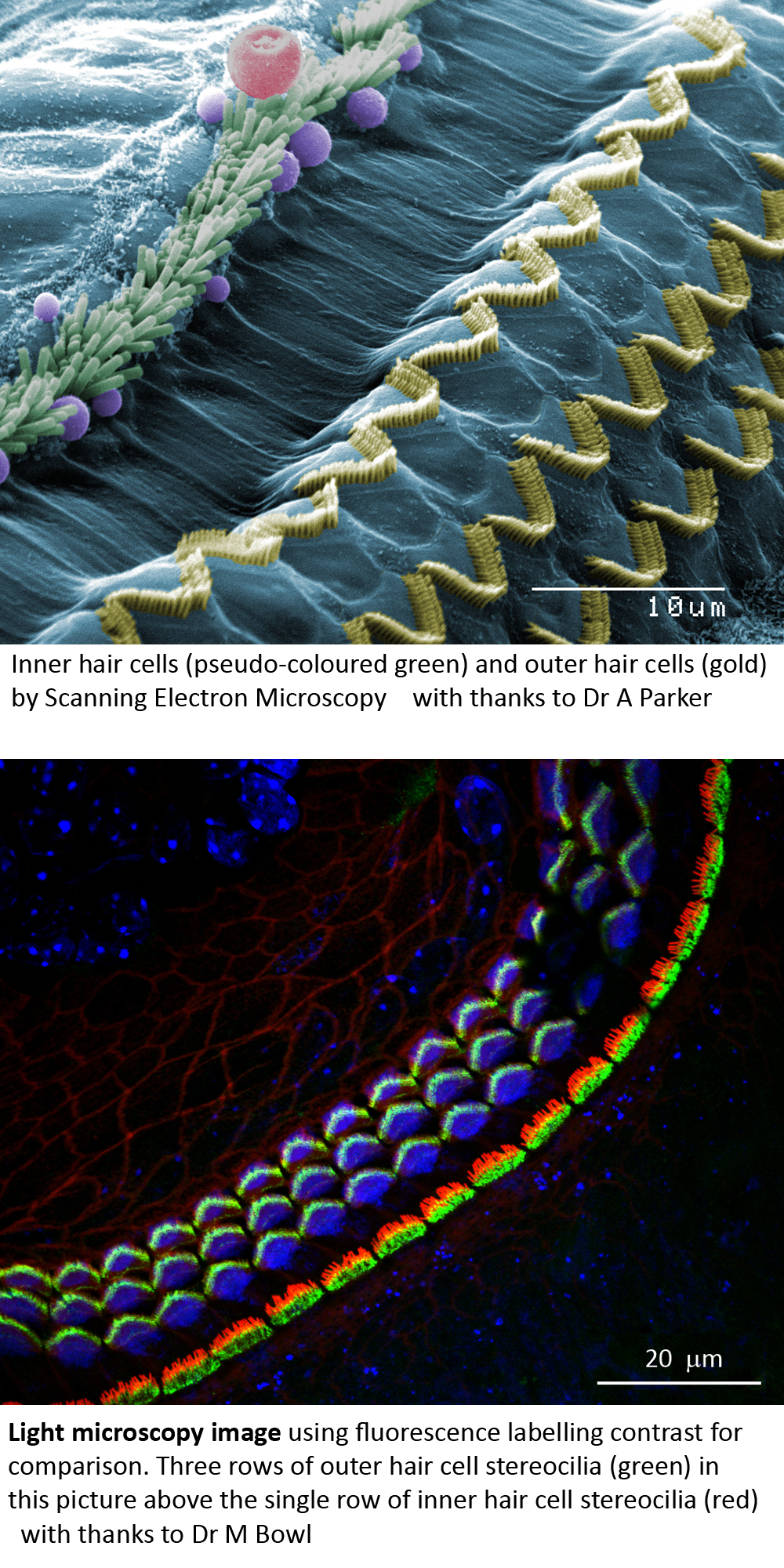 Hair cell picture